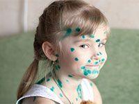 дівчинка в плямах від зеленки