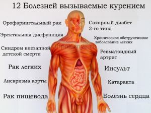 Топ 12 небезпечних хвороби викликаються курінням